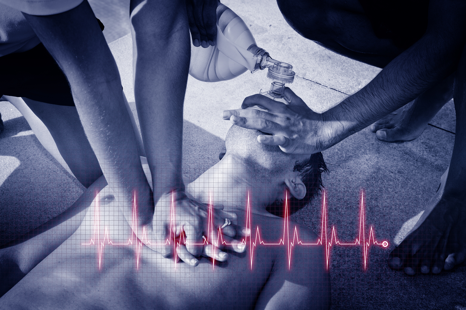 Kansas City Cardiac Arrest Attorneys | Popham Law